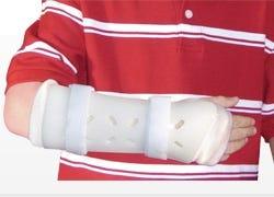 Fracture Bracing